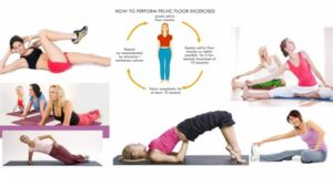 An Overview of Pelvic Floor Exercises
